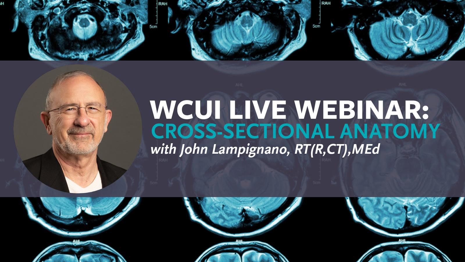 WCUI Live Webinar with John P. Lampignano
