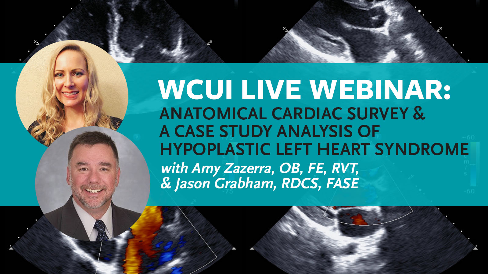 Image introducing our latest live CME webinar with head shots of our guest speakers, Amy Zazerra and Jason Grabham